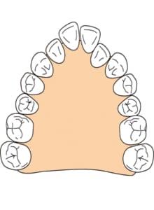 歯列に合わせた拡大装置を作ります