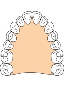 歯の成長力を利用して、歯並びを整えます